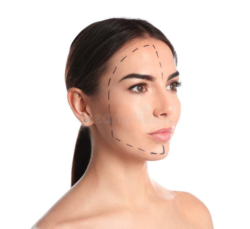 Νέα γυναίκα με τα σημάδια στο πρόσωπο για τη λειτουργία αισθητικής χειρουργικής στοκ φωτογραφίες
