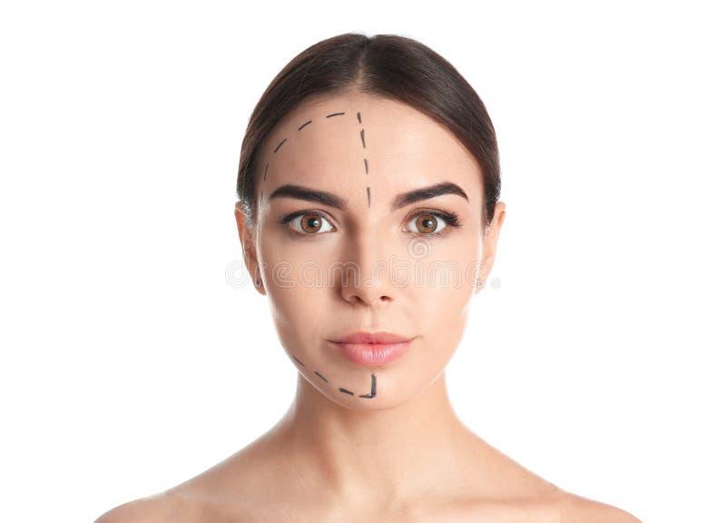 Νέα γυναίκα με τα σημάδια στο πρόσωπο για τη λειτουργία αισθητικής χειρουργικής στοκ εικόνες