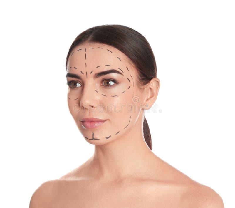 Νέα γυναίκα με τα σημάδια στο πρόσωπο για τη λειτουργία αισθητικής χειρουργικής στοκ εικόνες με δικαίωμα ελεύθερης χρήσης
