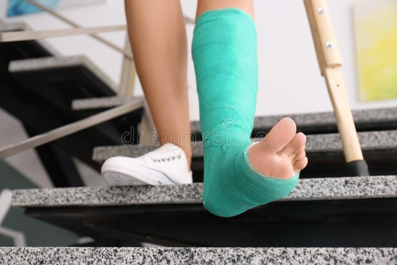 Νέα γυναίκα με το δεκανίκι και σπασμένο πόδι χυτός στοκ εικόνα με δικαίωμα ελεύθερης χρήσης