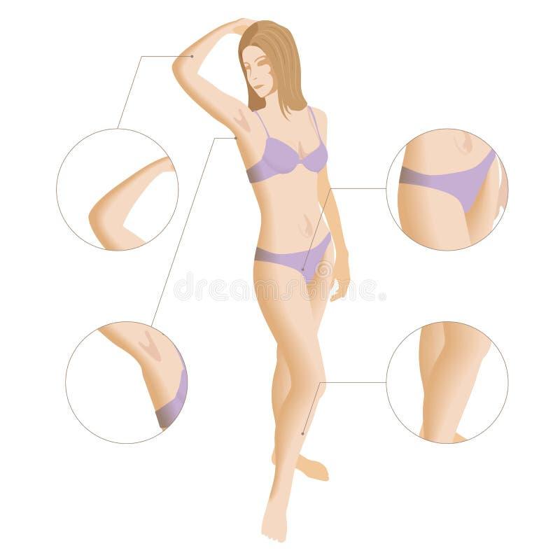 Νέα γυναίκα που κρατά το βραχίονά της επάνω και που παρουσιάζει underarm, ομαλό σαφές δέρμα Epilation και depilation της τρίχας απεικόνιση αποθεμάτων