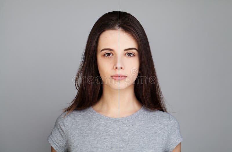 Νέα πρότυπη γυναίκα με το πρόβλημα δερμάτων Θηλυκό πρόσωπο στοκ εικόνες με δικαίωμα ελεύθερης χρήσης