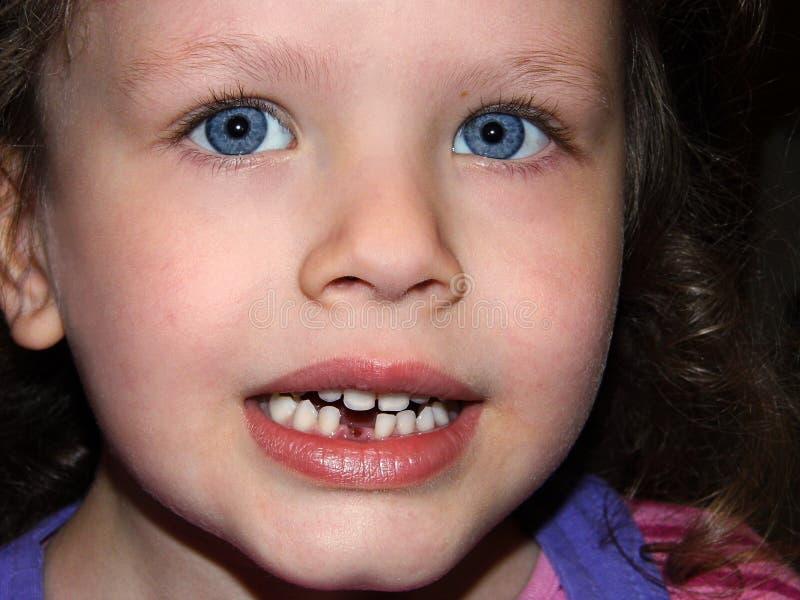 Νέο κορίτσι με τα μπλε μάτια που παρουσιάζουν ελλείπον δόντι της στοκ εικόνα