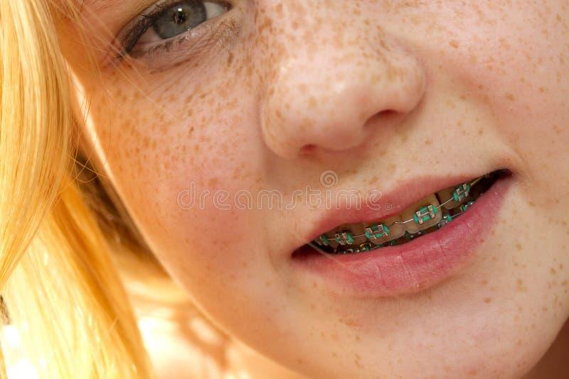 Νέο κορίτσι με τις φακίδες και τα στηρίγματα στοκ φωτογραφίες με δικαίωμα ελεύθερης χρήσης