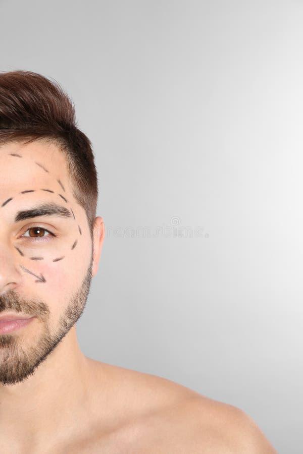 Νεαρός άνδρας με τα σημάδια στο πρόσωπο για τη λειτουργία αισθητικής χειρουργικής στο γκρίζο κλίμα στοκ εικόνα