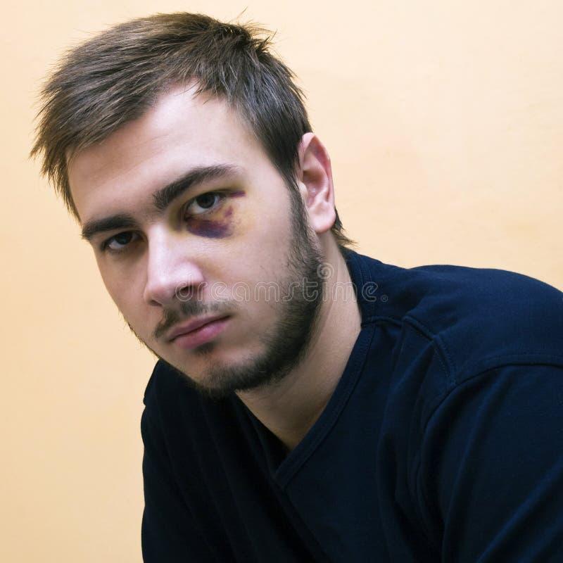 Νεαρός άνδρας με ένα μαυρισμένο μάτι στοκ φωτογραφία με δικαίωμα ελεύθερης χρήσης