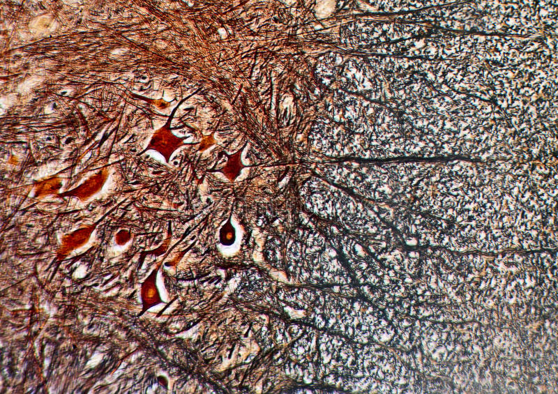 νευρικός ιστός μικροσκ&omicro στοκ φωτογραφίες