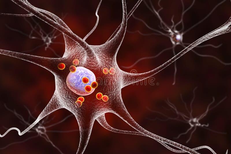 Νευρώνες σε Parkinson& x27 ασθένεια του s ελεύθερη απεικόνιση δικαιώματος