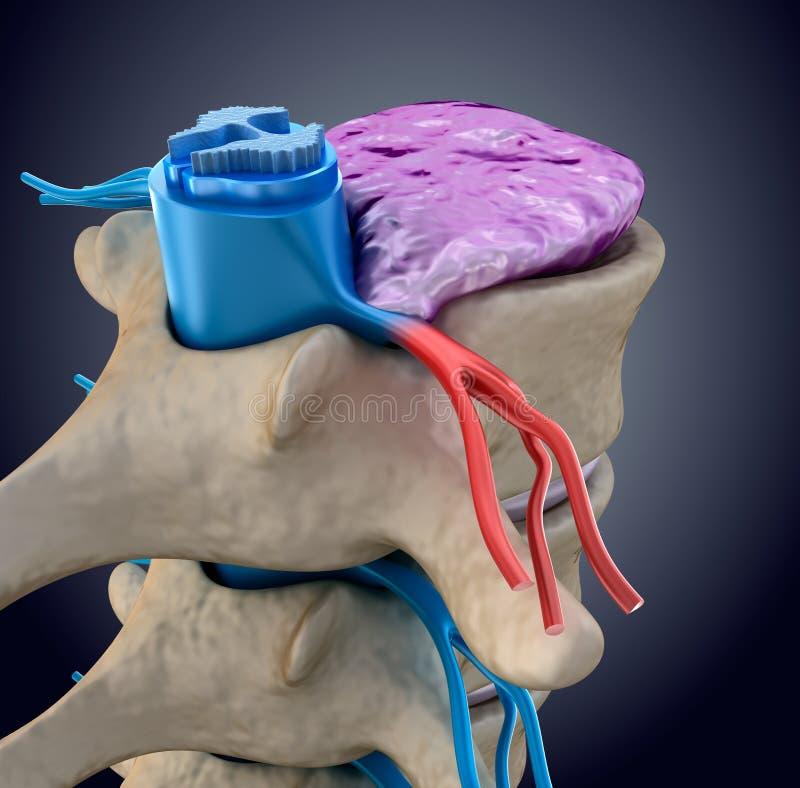 Νωτιαίος μυελός υπό πίεση του διογκώνοντας δίσκου διανυσματική απεικόνιση