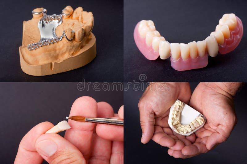 Οδοντικά μοντέλα κεριών στοκ φωτογραφία με δικαίωμα ελεύθερης χρήσης