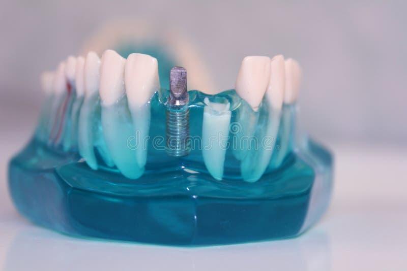 οδοντικά πρότυπα δόντια στοκ εικόνες με δικαίωμα ελεύθερης χρήσης