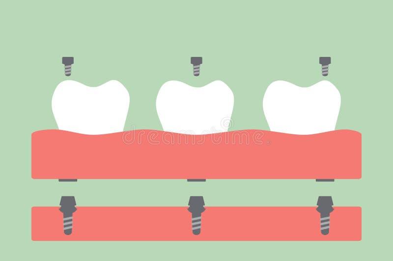 Οδοντικές προσθέσεις, οδοντοστοιχία πλήρωσης στη γόμμα απεικόνιση αποθεμάτων