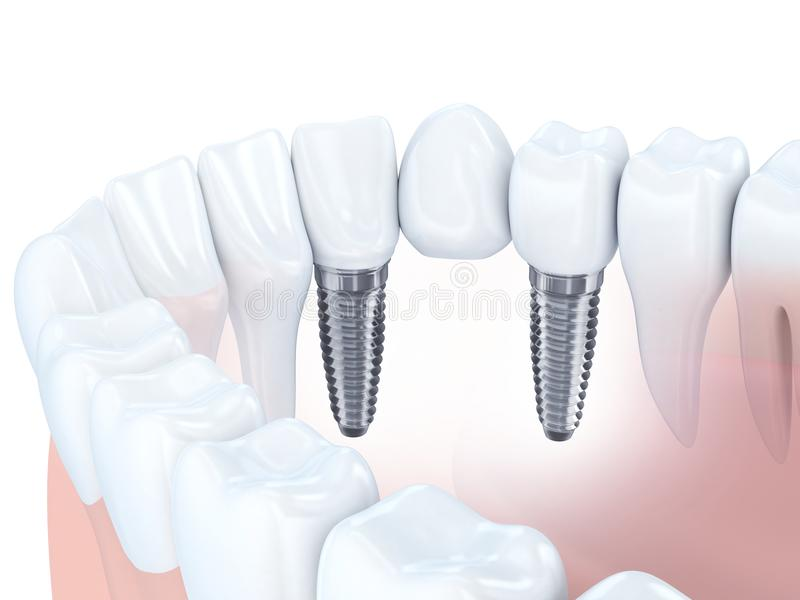 Οδοντική γέφυρα μοσχευμάτων ελεύθερη απεικόνιση δικαιώματος