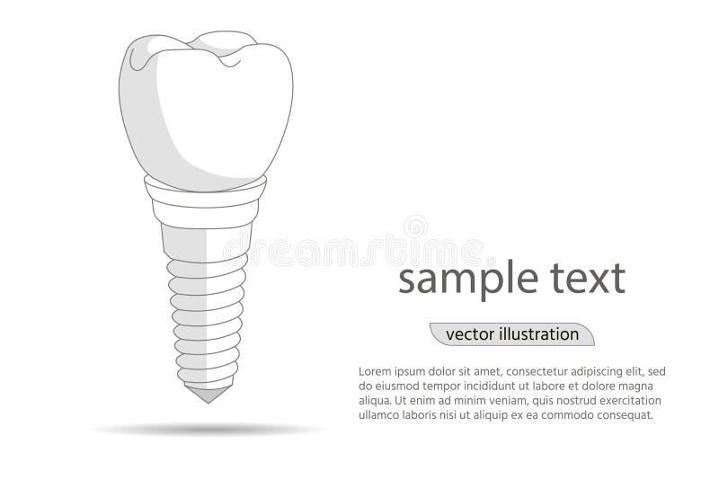 Οδοντικό λογότυπο μοσχευμάτων, εικονίδιο Οδοντιατρική και προσοχή εμφύτευσης στα δόντια απεικόνιση διανυσματική απεικόνιση