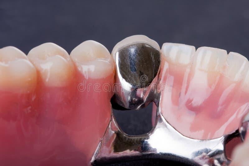 Οδοντικό μοντέλο κεριών στοκ φωτογραφία με δικαίωμα ελεύθερης χρήσης