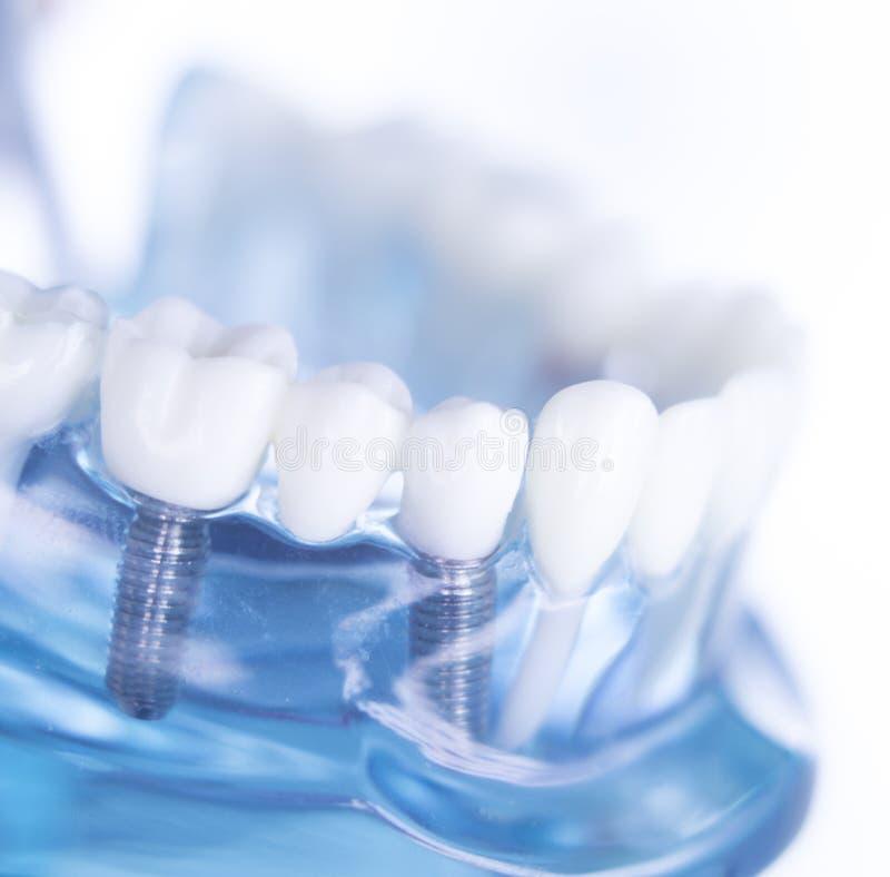 Οδοντικό μόσχευμα δοντιών Dentsts στοκ εικόνα με δικαίωμα ελεύθερης χρήσης