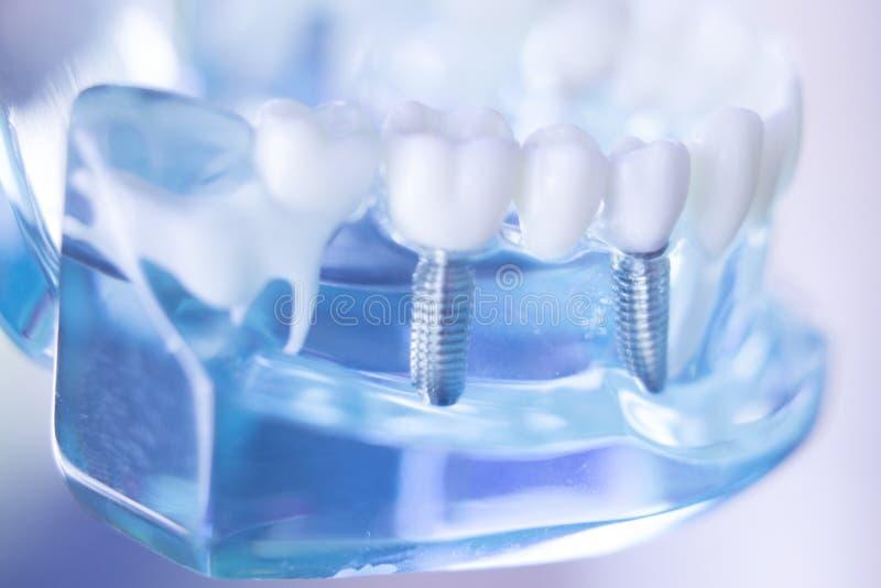Οδοντικό μόσχευμα δοντιών Dentsts στοκ φωτογραφίες με δικαίωμα ελεύθερης χρήσης