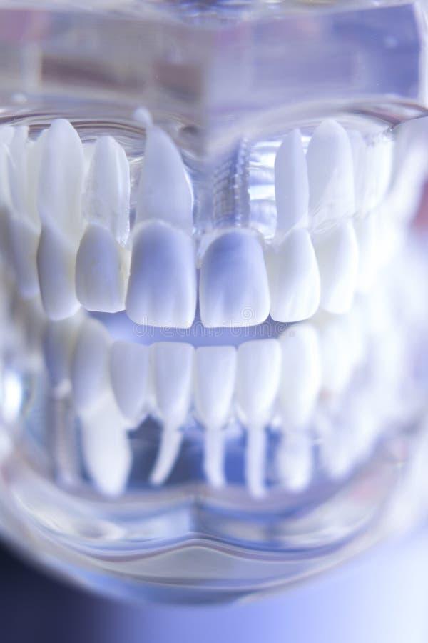 Οδοντικό μόσχευμα δοντιών Dentsts στοκ φωτογραφία