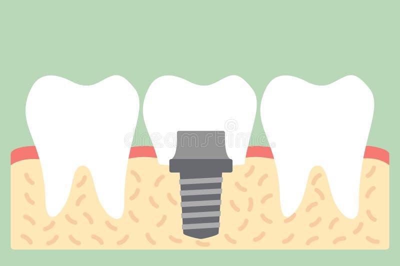 Οδοντικό μόσχευμα με την κορώνα, δομή ανατομίας συμπεριλαμβανομένου ελεύθερη απεικόνιση δικαιώματος