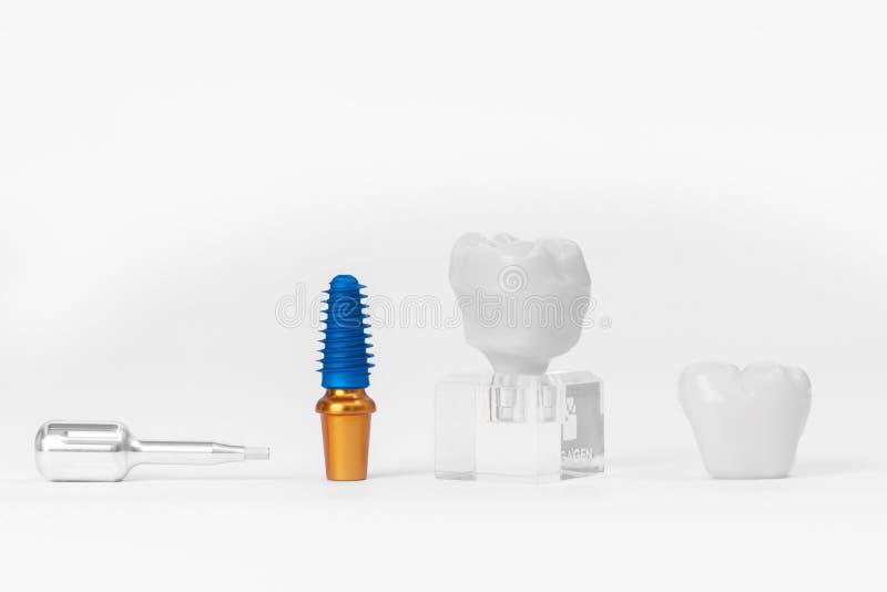Οδοντικό μόσχευμα στοκ εικόνες με δικαίωμα ελεύθερης χρήσης