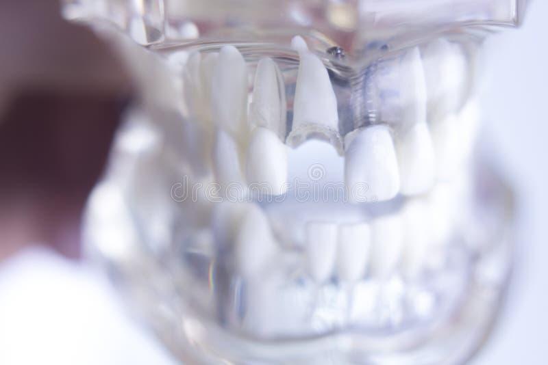 Οδοντικό πρότυπο δοντιών Dentsts στοκ εικόνα