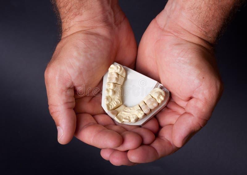 οδοντικό πρότυπο κερί στοκ φωτογραφία με δικαίωμα ελεύθερης χρήσης