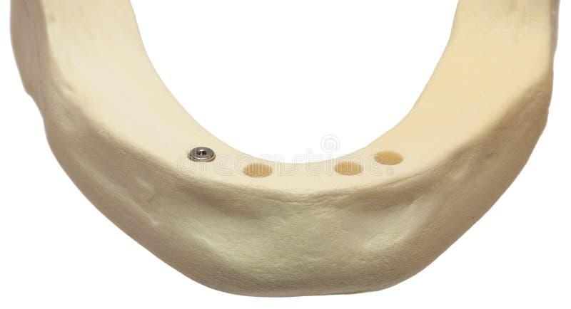 οδοντικό στόμα σαγονιών μ&omicr στοκ φωτογραφία