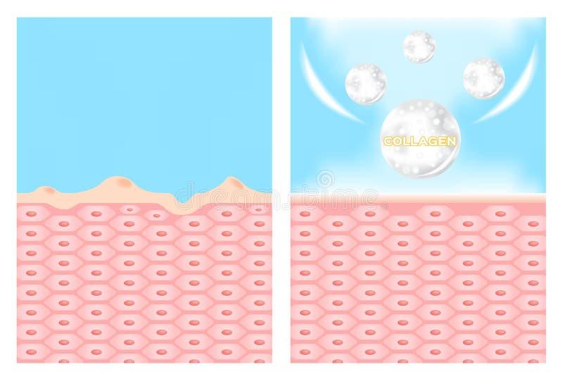 Οι άλκες και το λοσιόν κρέμας ισχύουν στο δέρμα να πάρουν έξω μια ακμή ακμή γραφική απεικόνιση αποθεμάτων