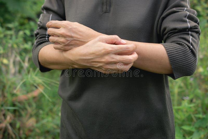 Οι γυναίκες γρατσουνίζουν τα όπλα ο ίδιος από να φαγουρίσουν υγιή σε ομο στοκ φωτογραφία με δικαίωμα ελεύθερης χρήσης