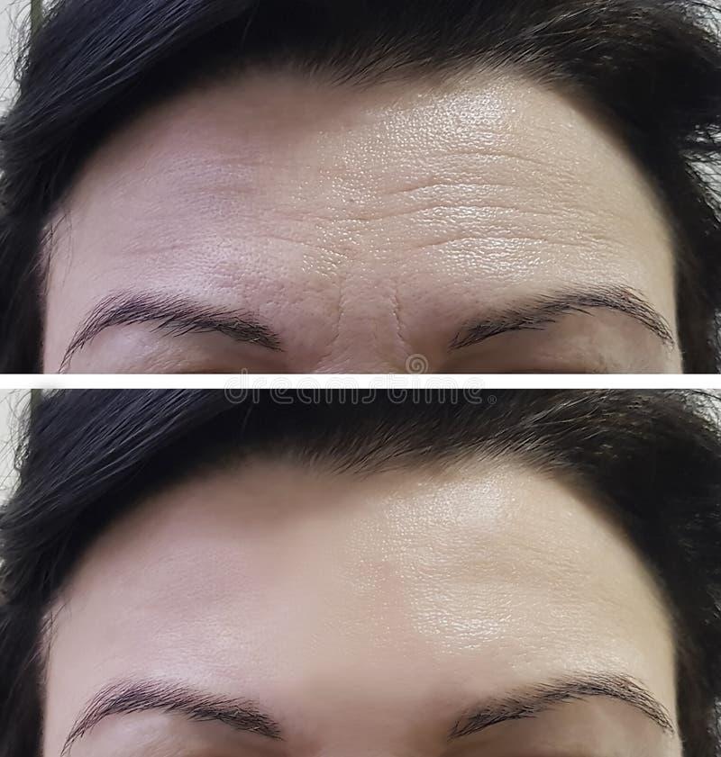 Οι γυναίκες μετώπων ζαρώνουν πριν και μετά στοκ εικόνες