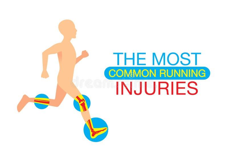 Οι πιό κοινοί τρέχοντας τραυματισμοί διανυσματική απεικόνιση