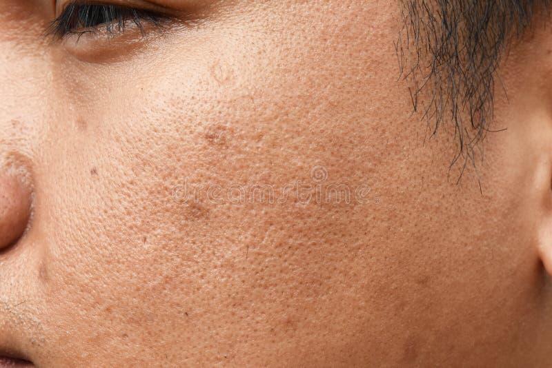 Οι πόροι και ελαιούχος στο νέο ασιατικό δέρμα προσώπου ατόμων επιφάνειας δεν παίρνουν την προσοχή για πολύ καιρό στοκ φωτογραφία με δικαίωμα ελεύθερης χρήσης