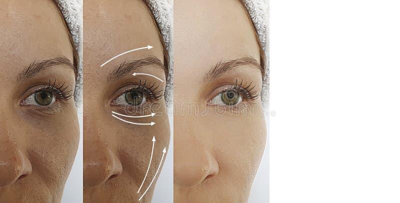 Οι ρυτίδες για ενήλικες γυναίκες επηρεάζουν τη διαφορά γήρανσης μετά τη διαδικασία των αποτελεσμάτων και την άρση της θεραπείας α στοκ φωτογραφία