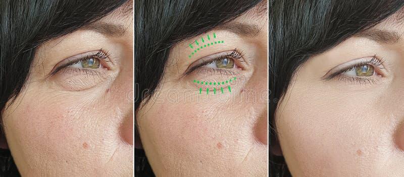 Οι ρυτίδες γυναικών αντιμετωπίζουν την πρησμένη αντίθεση θεραπείας αφαίρεσης blepharoplasty πριν από την κρεμώντας διόρθωση διαφο στοκ φωτογραφίες