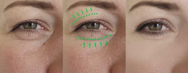 Οι ρυτίδες γυναικών αντιμετωπίζουν την πρησμένη αντίθεση θεραπείας αφαίρεσης πριν από την κρεμώντας διόρθωση διαφοράς θεραπείας στοκ φωτογραφία με δικαίωμα ελεύθερης χρήσης