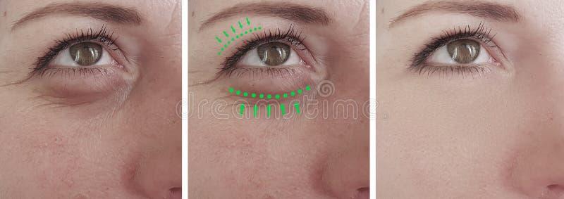 Οι ρυτίδες γυναικών αντιμετωπίζουν την πρησμένη αφαίρεση ανυψωτικός τη blepharoplasty αντίθεση θεραπείας πριν από την κρεμώντας δ στοκ εικόνες
