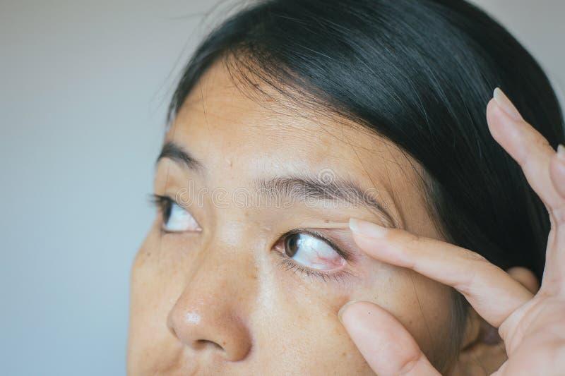 Οι φλέβες στην κόκκινη ασιατική γυναίκα ματιών, στρώμα βλέφαρων, προκαλούν τη χρήση των ματιών και όχι αρκετού υπολοίπου στοκ φωτογραφίες με δικαίωμα ελεύθερης χρήσης