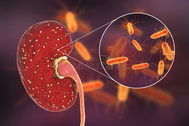 Οξύ pyelonephritis, ιατρική έννοια, και άποψη κινηματογραφήσεων σε πρώτο πλάνο των βακτηριδίων Escherichia coli ελεύθερη απεικόνιση δικαιώματος