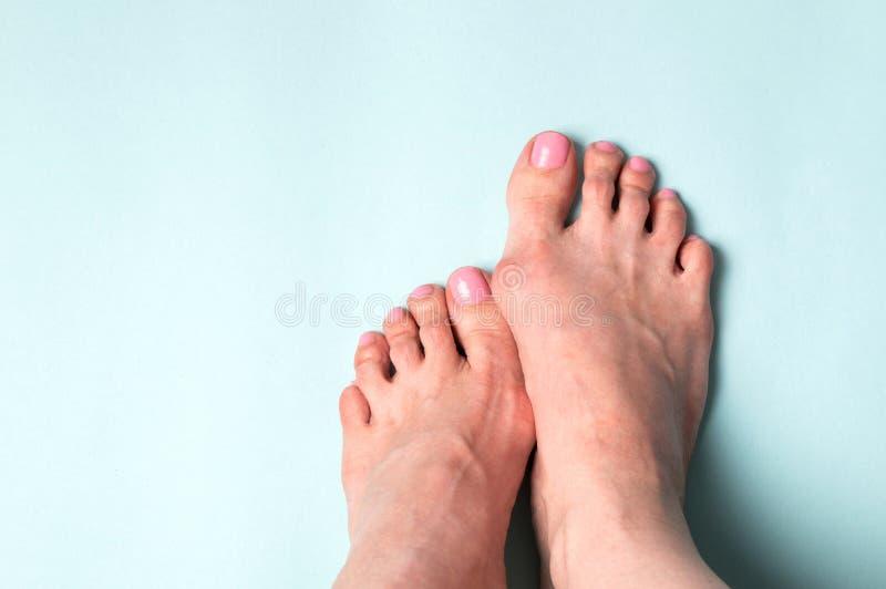 Ορθοπεδική επεξεργασία Παραμόρφωση Valgus από τα στενά παπούτσια στοκ εικόνες