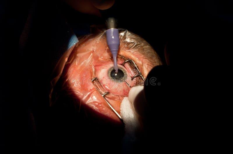 Οφθαλμολογική χειρουργική επέμβαση καταρρακτών στοκ εικόνες