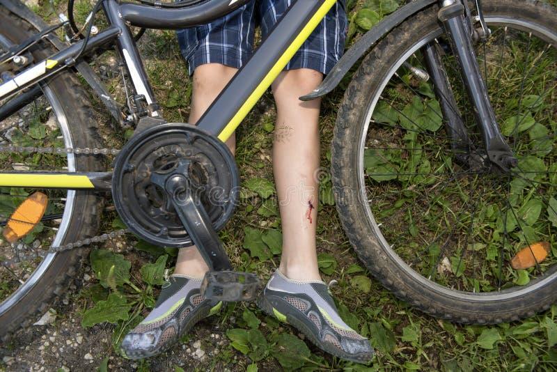 Ο έφηβος έχει πέσει από το ποδήλατο και τραυματίστηκε στοκ εικόνα με δικαίωμα ελεύθερης χρήσης