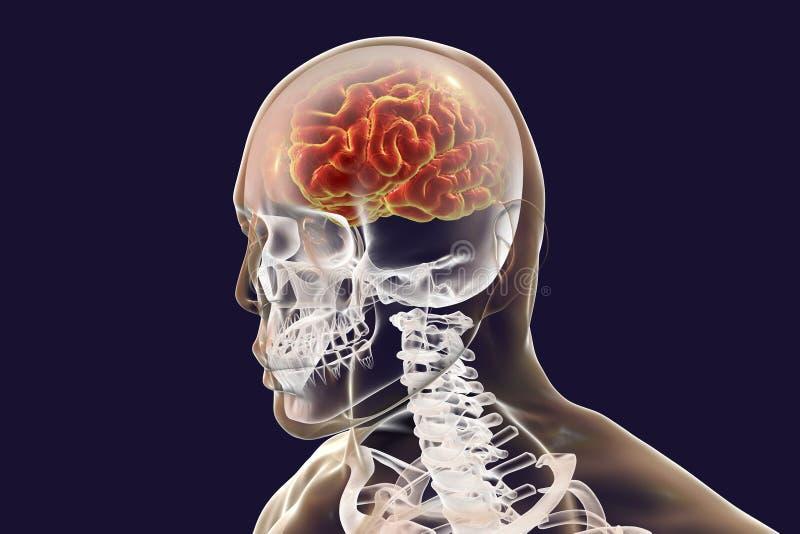Ο ανθρώπινος εγκέφαλος έδωσε έμφαση στο εσωτερικό σώμα, τρισδιάστατη απεικόνιση απεικόνιση αποθεμάτων