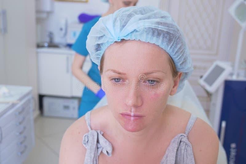 Ο ασθενής γυναικών σε ένα υγιεινό καπέλο αναμένει τη διαδικασία στο γραφείο γιατρών ` s Κινηματογράφηση σε πρώτο πλάνο 4K στοκ φωτογραφία με δικαίωμα ελεύθερης χρήσης