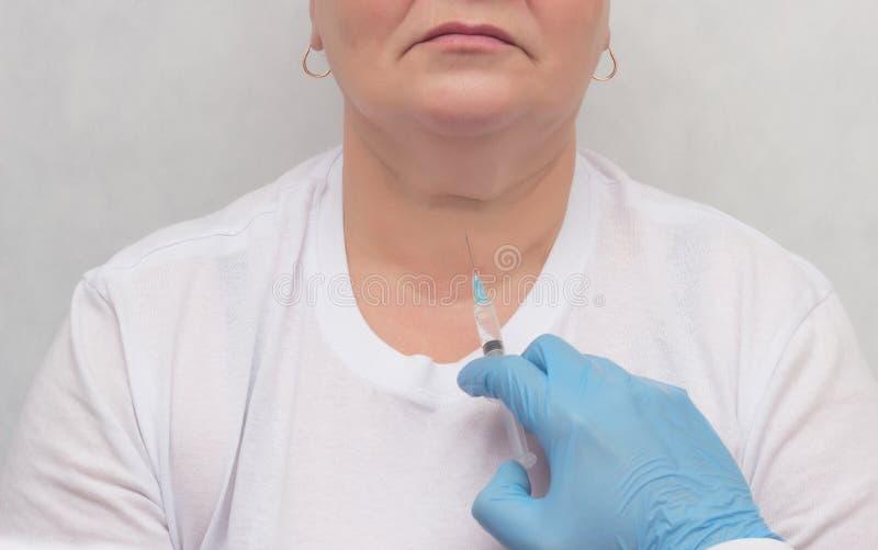 Ο γιατρός κάνει έναν υπομονετικό ασθενή μια βιοψία θυροειδή στην υποψία της ογκολογίας, κόμβος θυροειδή, κινηματογράφηση σε πρώτο στοκ εικόνες