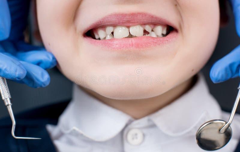 Ο θηλυκός οδοντίατρος εξετάζει τα δόντια του υπομονετικού παιδιού στοκ εικόνες με δικαίωμα ελεύθερης χρήσης
