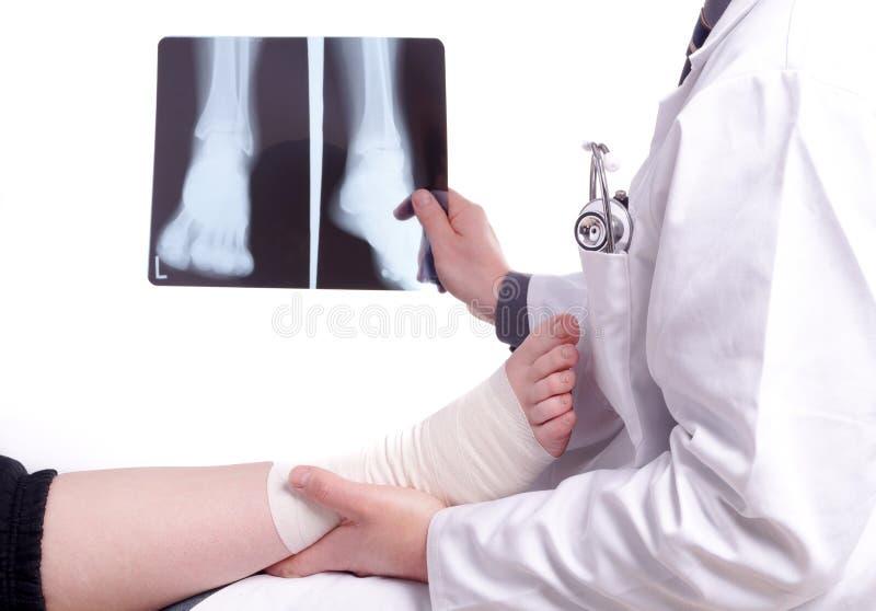 Ο διαγωνισμός ένα γιατρών εικόνα ακτίνας X το πόδι στοκ φωτογραφία με δικαίωμα ελεύθερης χρήσης