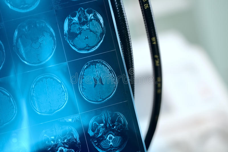 Ο Κ. εικόνα στο μετωπικό τμήμα του υπομονετικού εγκεφάλου στοκ φωτογραφίες με δικαίωμα ελεύθερης χρήσης