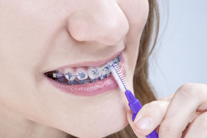Οδοντικές έννοιες υγιεινής Κινηματογράφηση σε πρώτο πλάνο που πυροβολείται του καυκάσιου έφηβη στοκ εικόνα με δικαίωμα ελεύθερης χρήσης