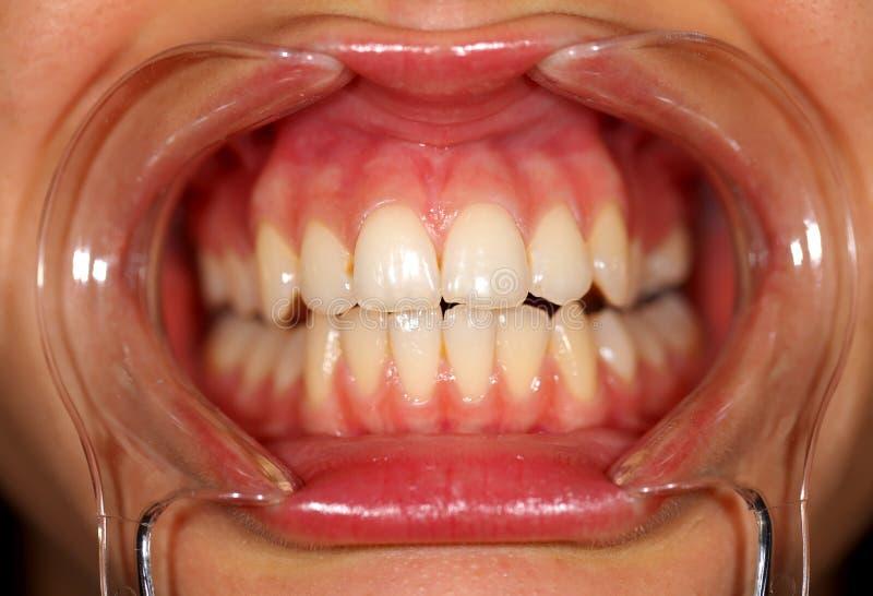 οδοντική εξέταση στοκ φωτογραφίες