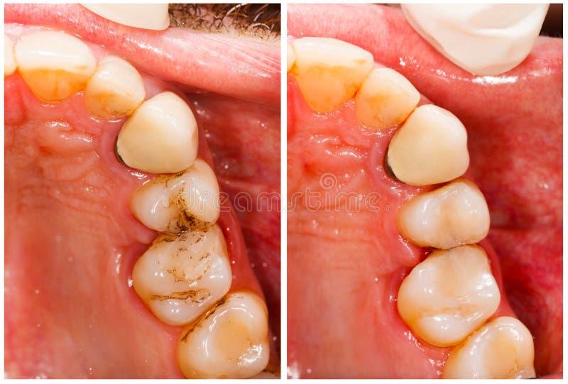 Οδοντική επεξεργασία στοκ φωτογραφίες με δικαίωμα ελεύθερης χρήσης